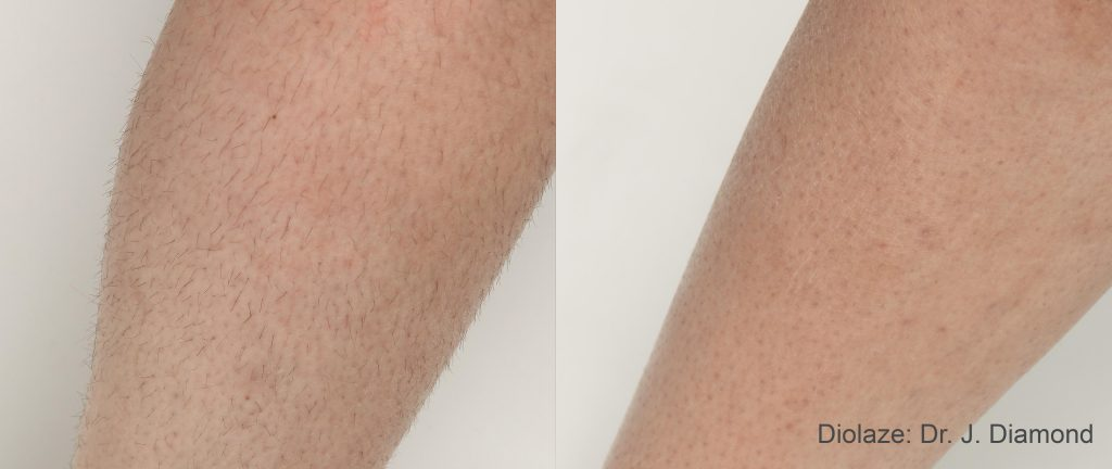 DiolazeXL after 3 treatments