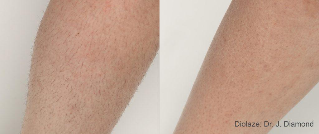 DiolazeXL after 3 treatments